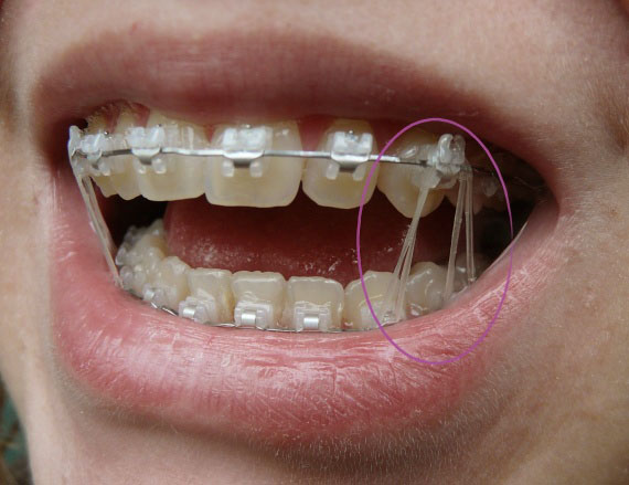 ::::images:osteopathie:orthodontie-elastique-img.jpg